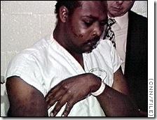 story.rodney.king.bruises